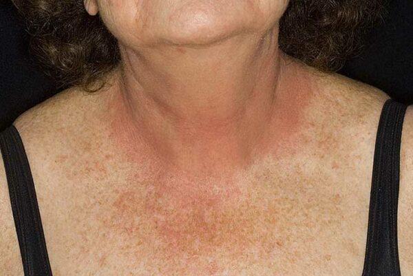 Аллергия на коже у детей и взрослых, причины, симптомы, лечение высыпаний, что делать если чешется