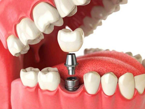 Что делать если появились первые признаки аллергии на зубные протезы