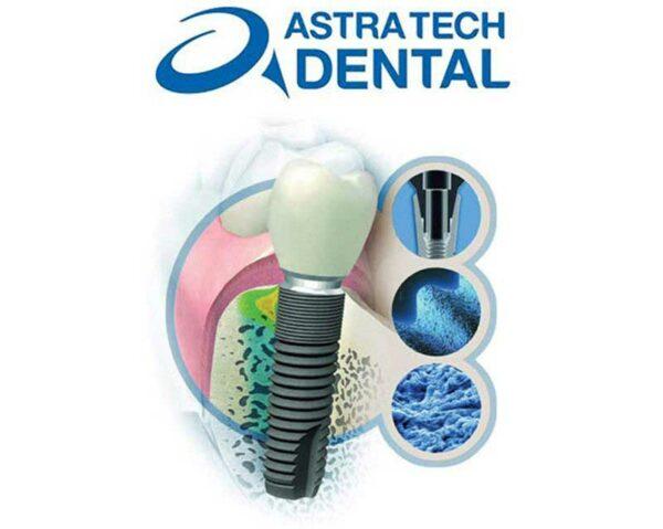 Аллергия на импланты зубов, грудные, титановые позвоночника, симптомы, диагностика и лечение, как выбрать, отзывы