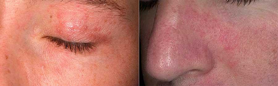 как выглядит аллергия на солнце