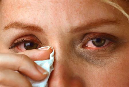 Зуд при аллергии на глазах