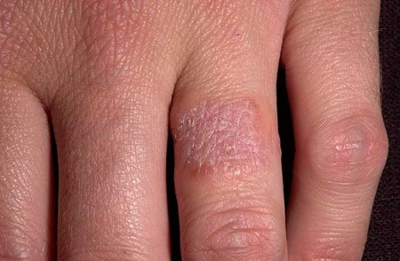 раздражение от металла на коже