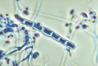 Trichophy tonrubrum
