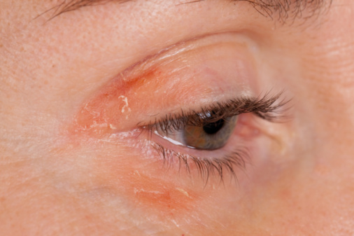 Psoriasis on a female eye