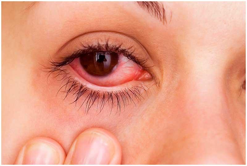 контактная аллергия