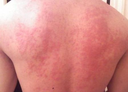 Сыпь по спине