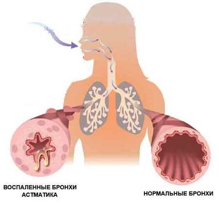 Аллергический ларингит, симптомы, лечение