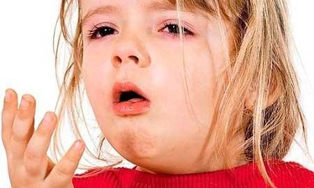 ларингит аллергический у детей