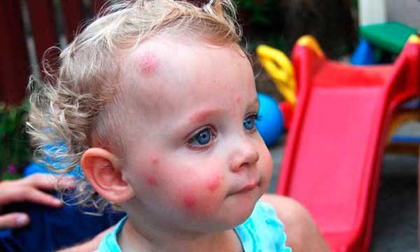 аллергия на комариные укусы у детей