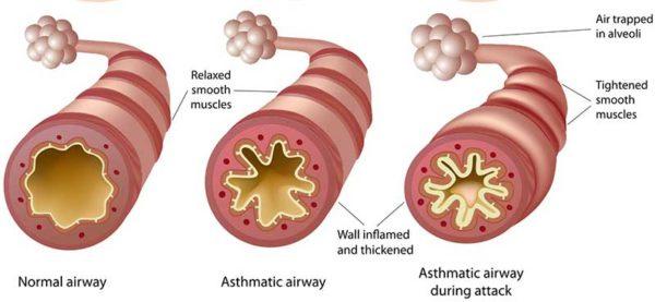 Аллергия на мебель, симптомы, лечение