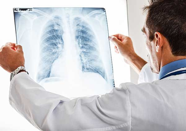 аллергический альвеолит легких