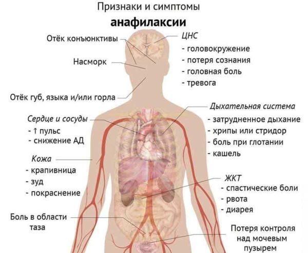 признаки и симптомы анафилаксии