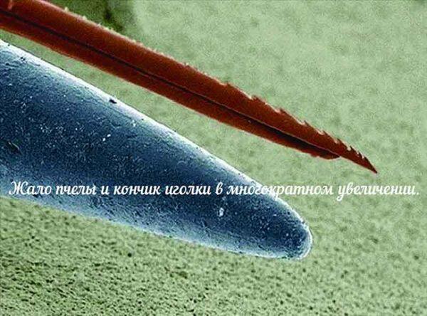 Что такое инсектная аллергия и как ее лечить