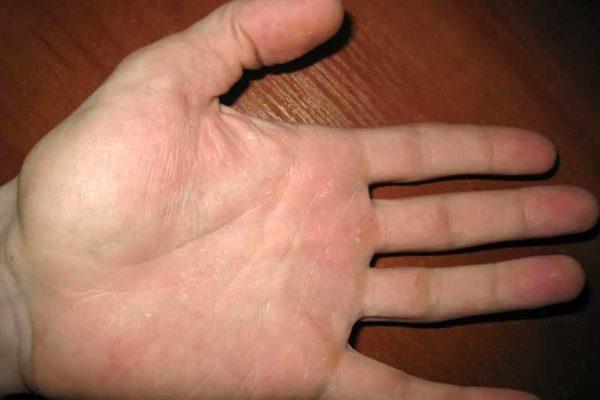 аллергия на картофель у взрослого