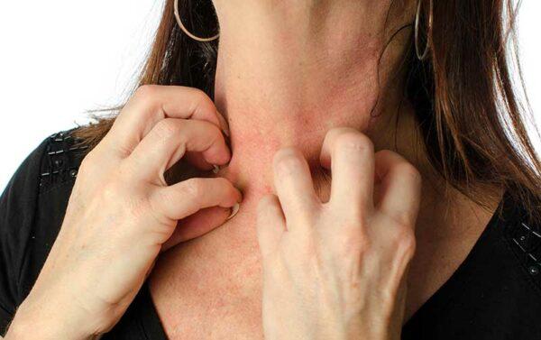 Симптомы аллергии на духи