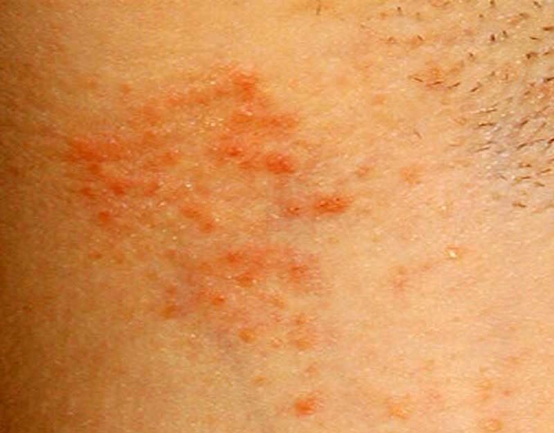 аллергия на антиперспирант