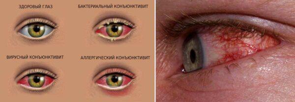 чешутся глаза