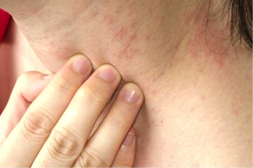 аллергия на шее