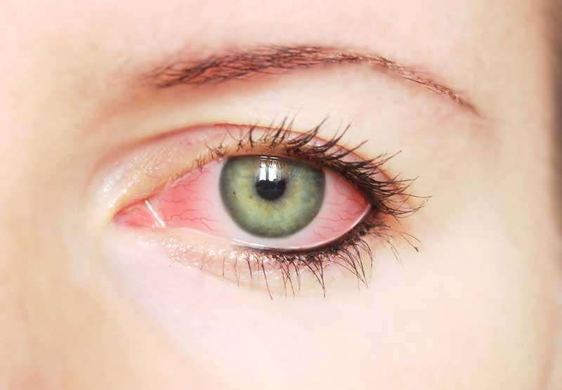 Что делать если от аллергии чешутся глаза?