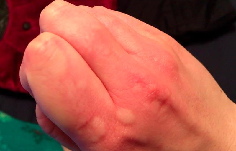 аллергия на холод симптомы и лечение этот