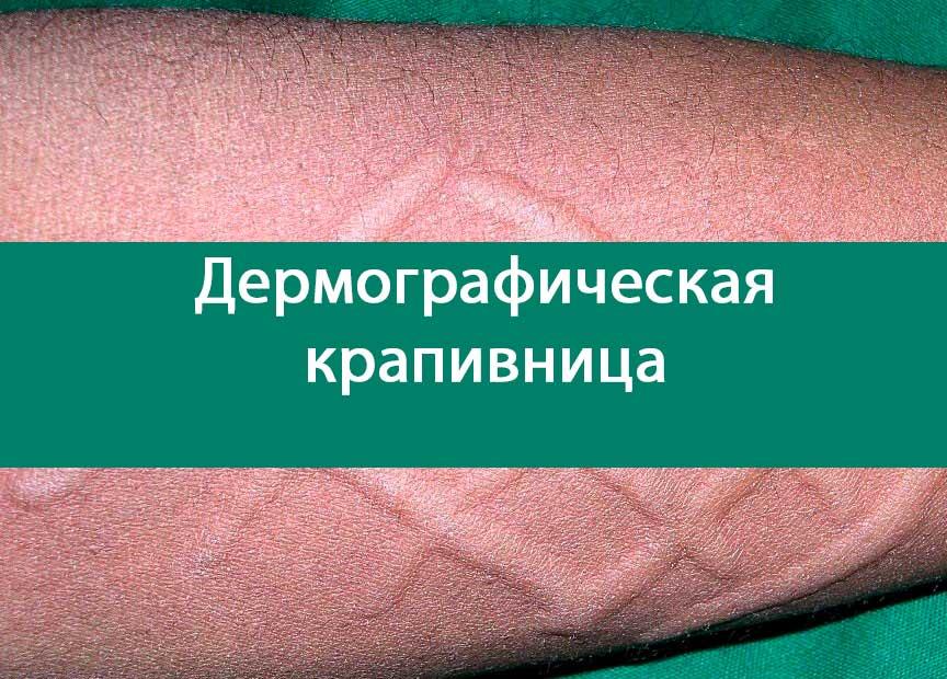 дермографическая крапивница