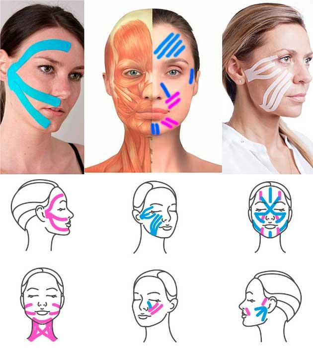 Медицинская маска вызывает аллергию. Что делать?