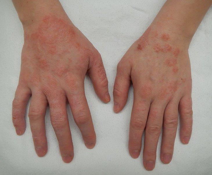 Аллергия на слаймы и лизуны, в чем опасность игрушки?