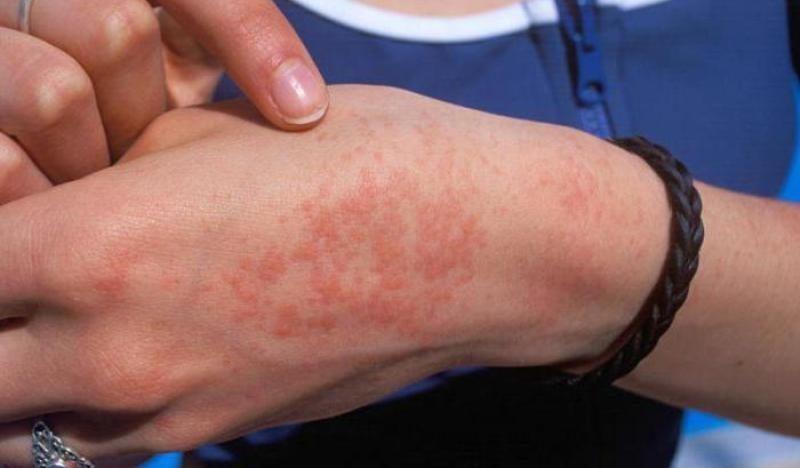 аллергия на антисептик симптомы