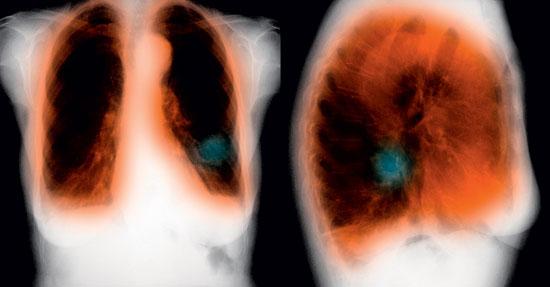 аллергия от сигарет красные пятна