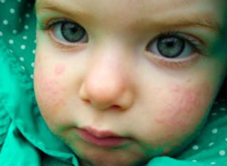 Признаки аллергии на лице