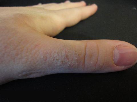 фото пузыри на коже