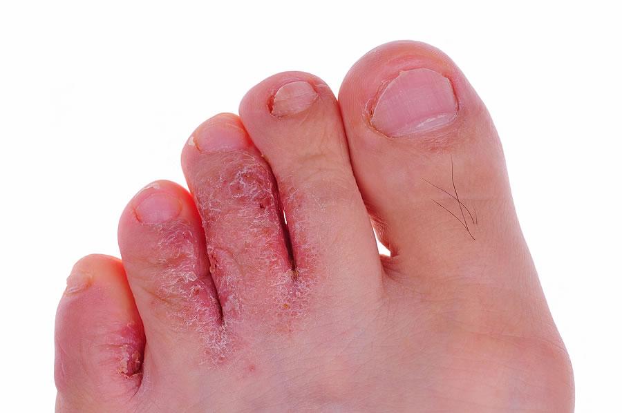 От грибка ломит ногти на ногах