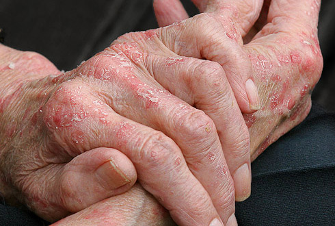 Атопический дерматит прошел у ребенка