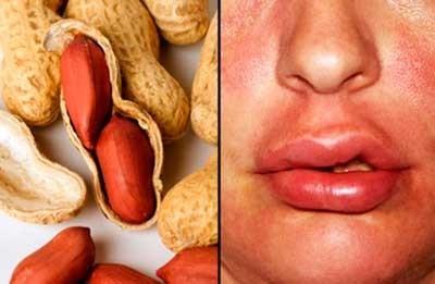 Симптомы аллергии на арахис