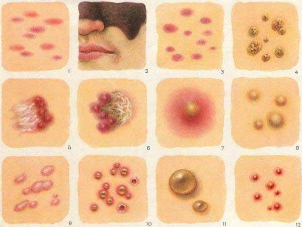 средство от аллергии на антибиотики