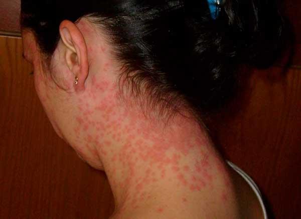 аллергия на шее причины чем лечить