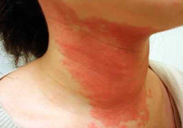 аллергия на шее у взрослого причины фото
