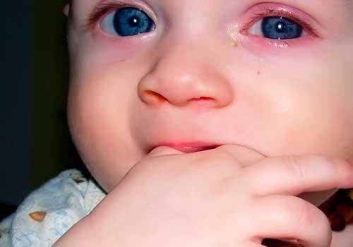 аллергия на морковь симптомы