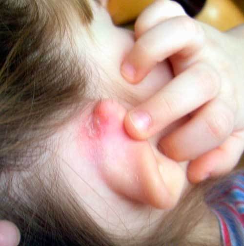 аллергия на шампунь фото
