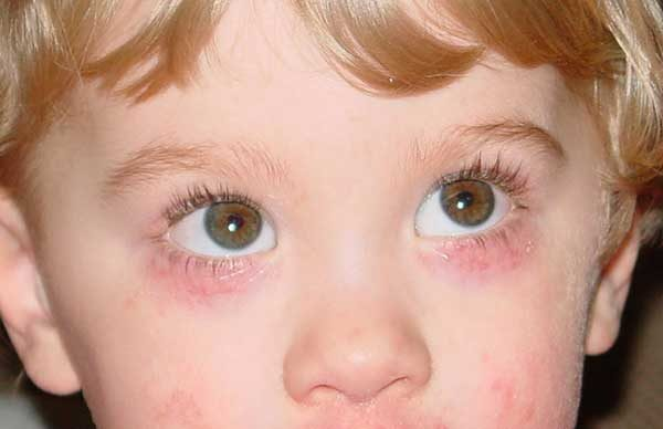 аллергия на веке глаза от медицинского