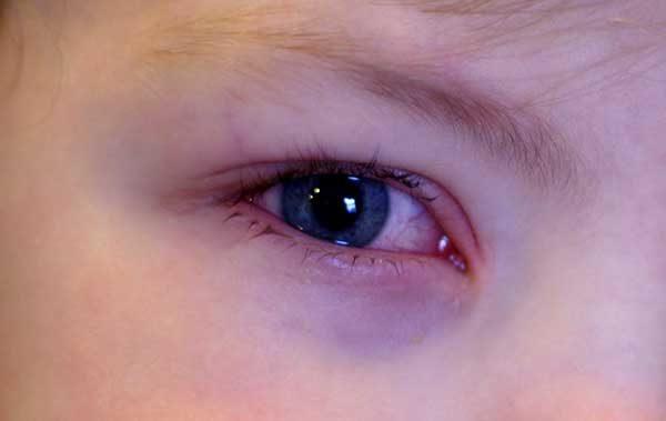 Аллергия на шерсть симптомы и лечение