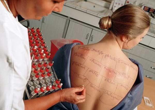 Аллергия на чеснок у ребенка и взрослых, симптомы, как проявляется, лечение