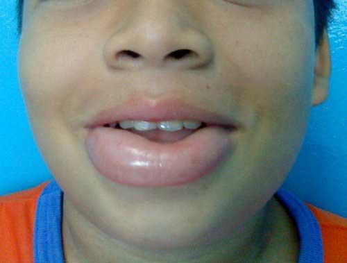 аллергия на анестезию в стоматологии симптомы