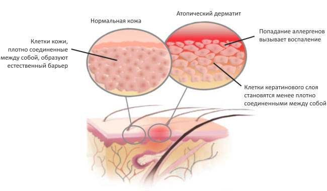 Дисгидротическая экзема дисгидротический дерматит