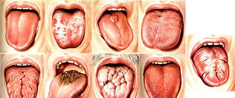 аллергический стоматит фото