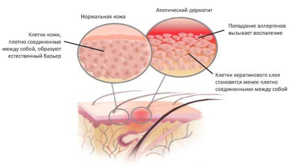 Внутреннее средство от псориаза